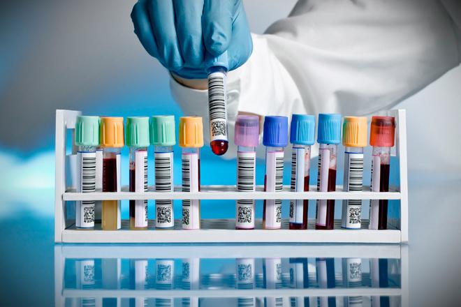 тестове за наркотици, Амфетамини, Метамфетамини, Екстази, Кокаин, Марихуана, Хероин, Бензодиазепини, Барбитурати, Алкохол, Никотин, Котинин